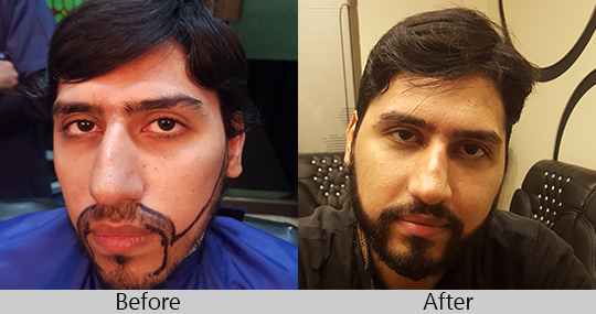 hair-transplant-in-lahore